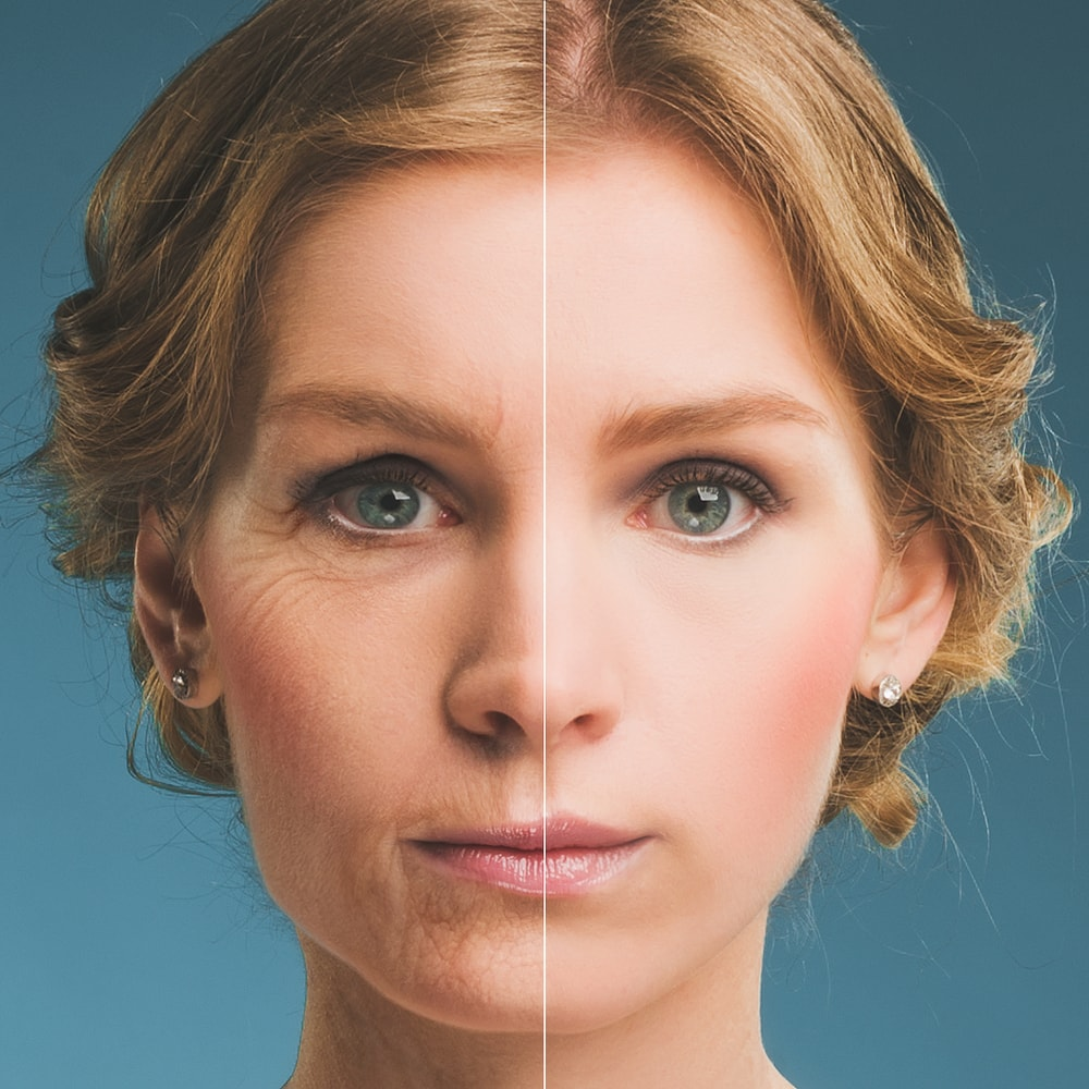 An aging lady and a young lady split in half to show the contrast