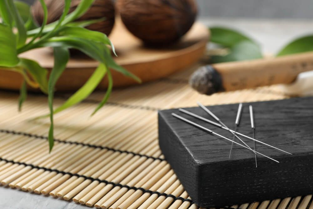 Ask the Experts: What Can Acupuncture Help?