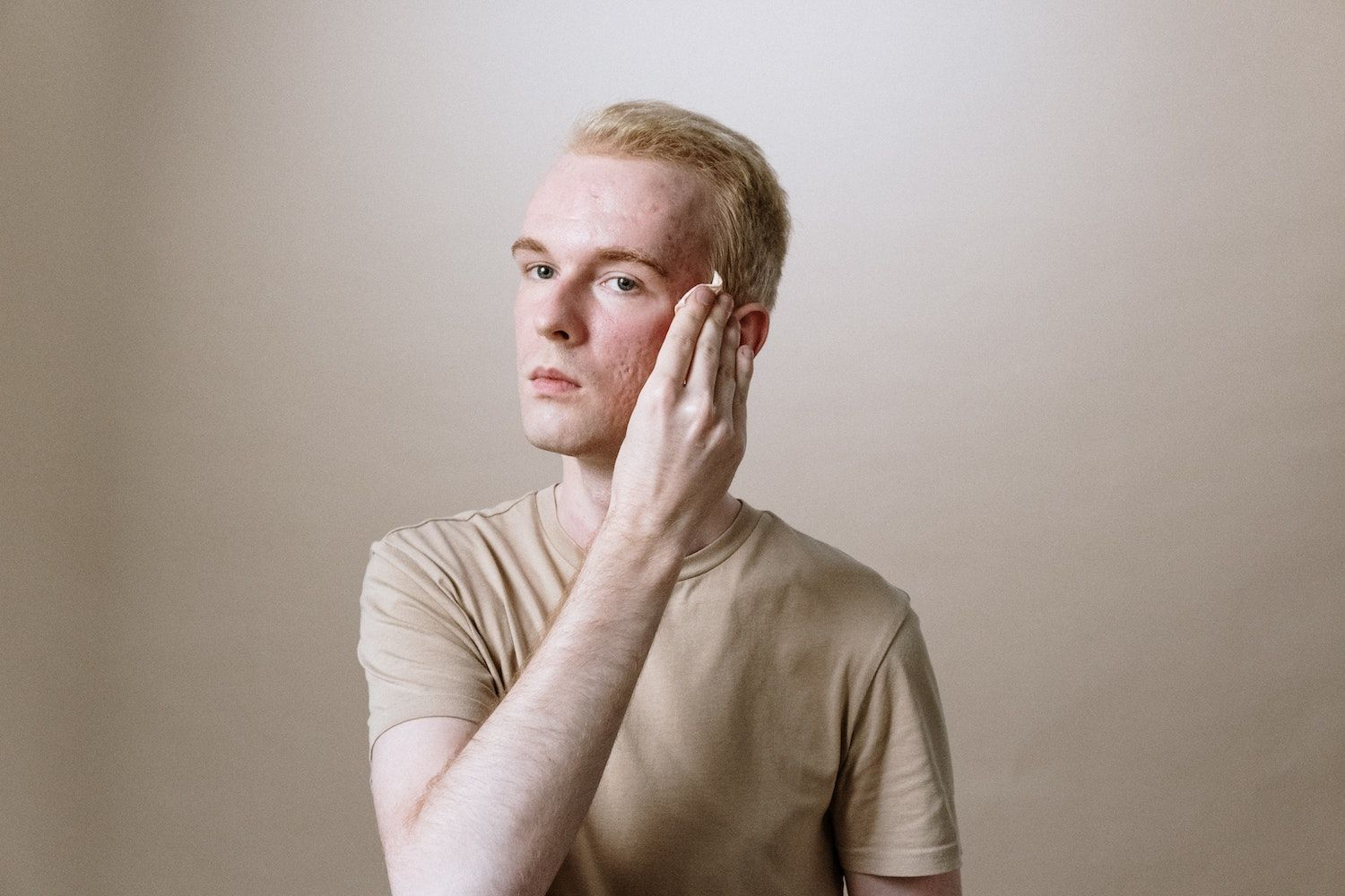 Mental health support recommended for those struggling with acne
